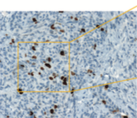 Quantitative Image Analysis of Ki-67 Immunohistochemistry Compared with Manual Pathologist Analysis in Breast Cancer - POSTER